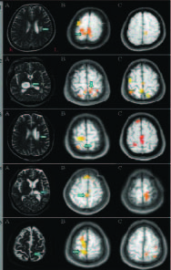MRI scans of live patients. A: diagnostic MRI images, B: before VR, showing ipsilateral activations, C: after VR, showing decreased ipsilateral activations