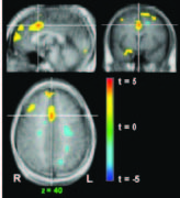 Response to a 2D environment with activation of anterior cingulate gyrus