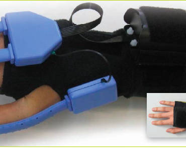 The SpiderGlove: Patient-Optimized Modular Data Gloves for Pediatric and Adult Rehabilitation